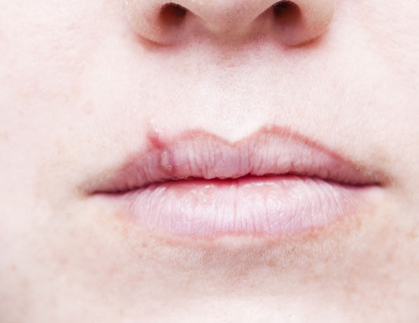 Oralni herpes